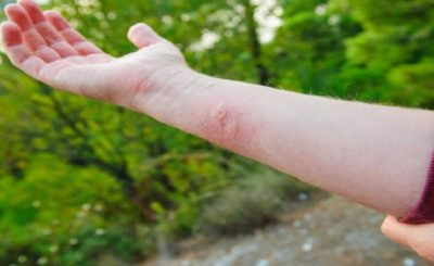 how to treat a yellow jacket sting